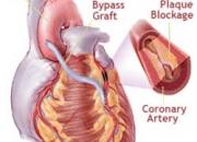 Cost Heart Surgery Mumbai India, Heart Surgery Mumbai